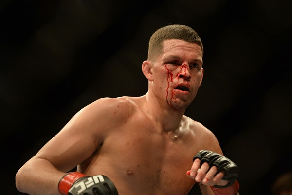 UFC Lightweight Nate Diaz Skips Out on UFC on FOX 13 Open Workouts
